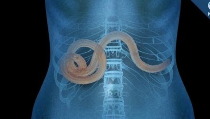 viermii sunt paraziți în corpul uman