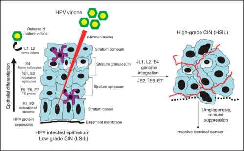 human papillomavirus pathogenesis condylomata acuminata folder