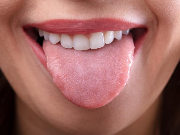 Papiloma boca sintomas. Papiloma boca sintomas. Cancer prostata zona
