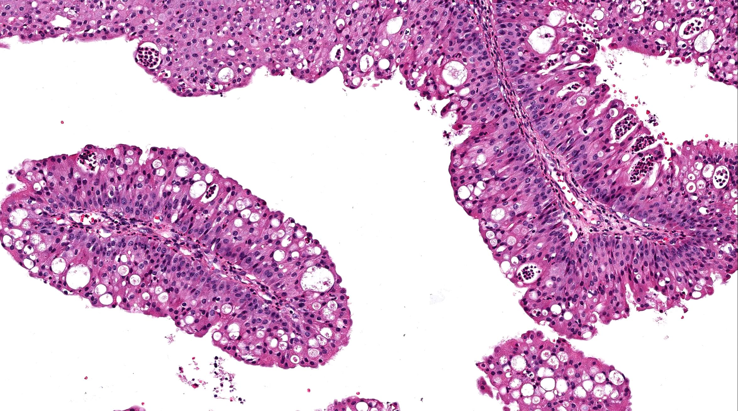 vestibular papillomatosis histopathology