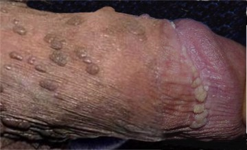 Human papillomavirus infections warts or cancer. Traducere