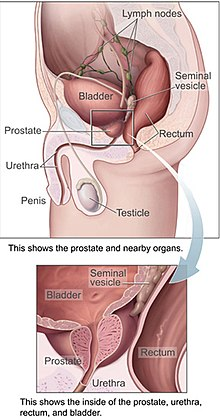 Que es el cancer ingles, Cancer de prostata ingles