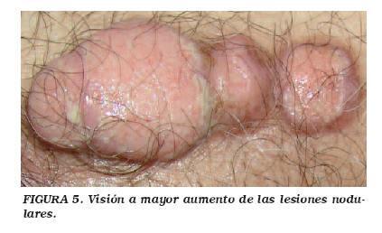 Cancer prostata y vejiga. Arderea în uretra de prostată