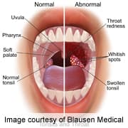 throat papilloma causes