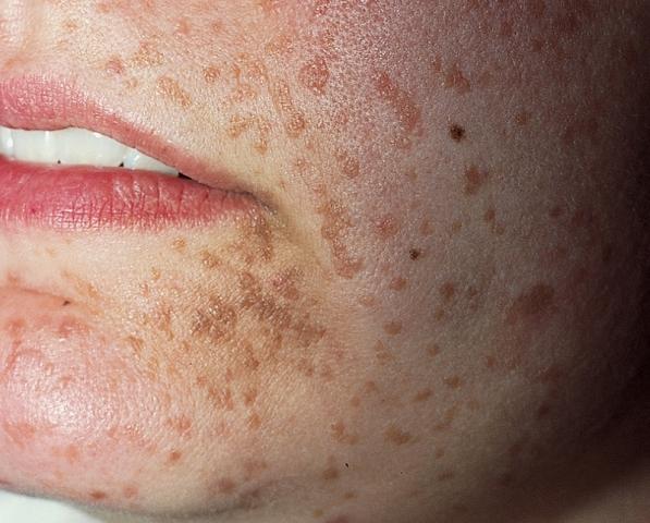 papiloame pe tratamentul buzelor mici)