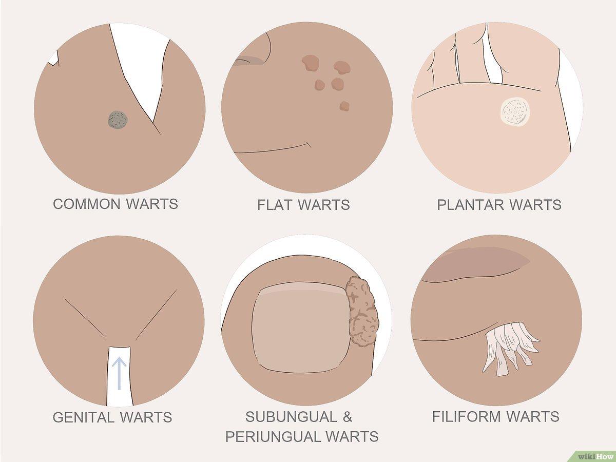 tratament îndepărtarea verucilor genitale
