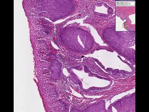 Candidoza (Candida Albicans): ce este, de ce apare, riscuri si tratament | csrb.ro