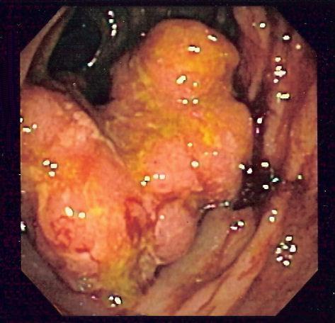 Investigatii la colon