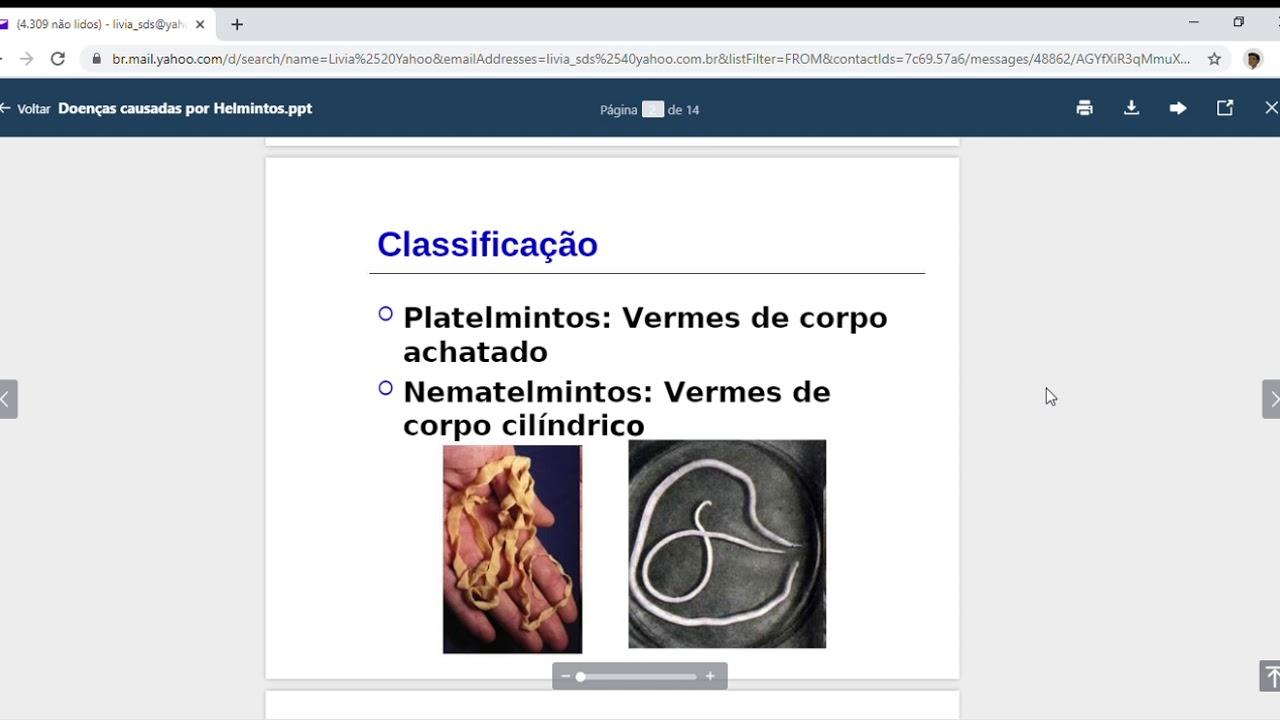 Adalah helmintologie - Cauze mentale ale apendicitei