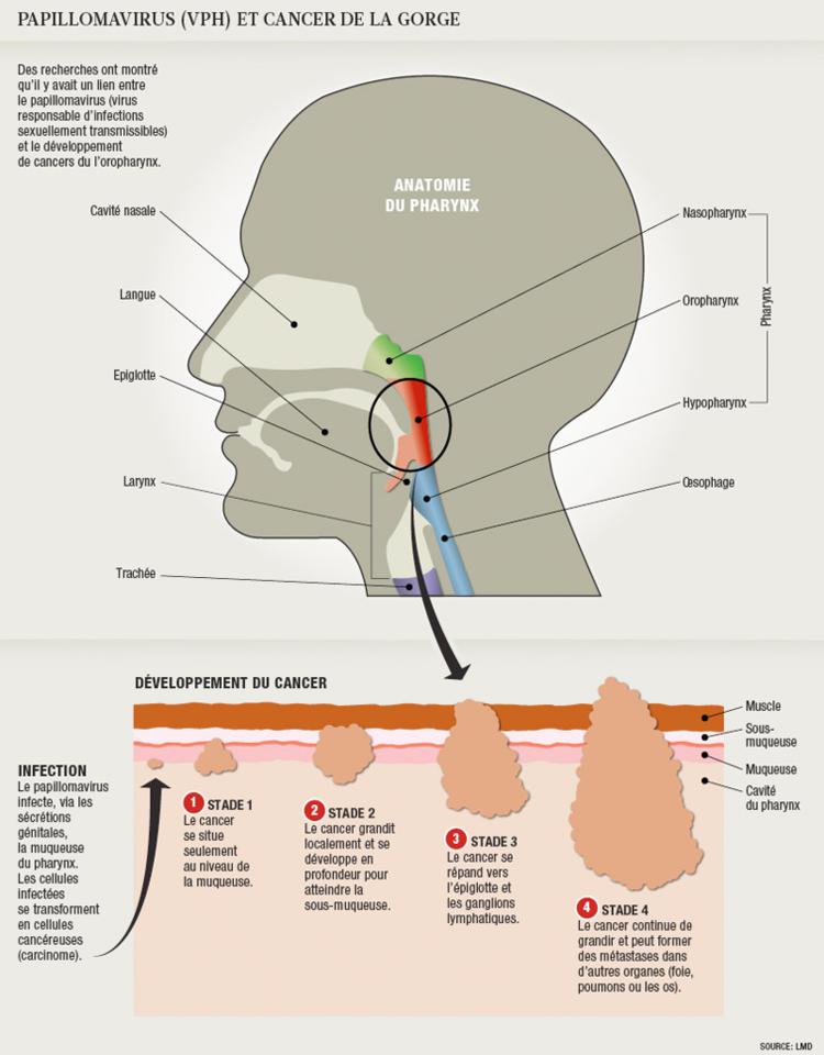Detection papillomavirus gorge - Hpv mannen oorzaak