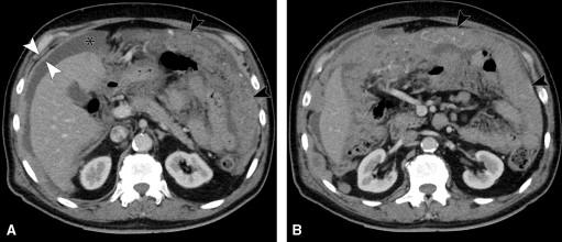 inverted urothelial papilloma pathology