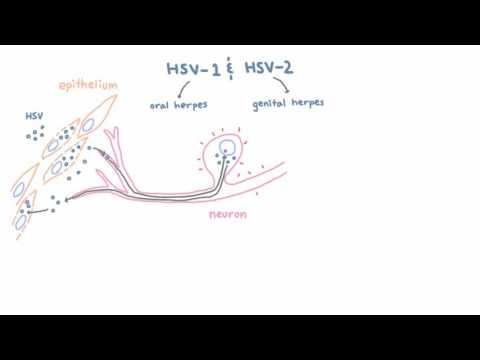 cum să scapi de duo helminths papilloma and malignancy