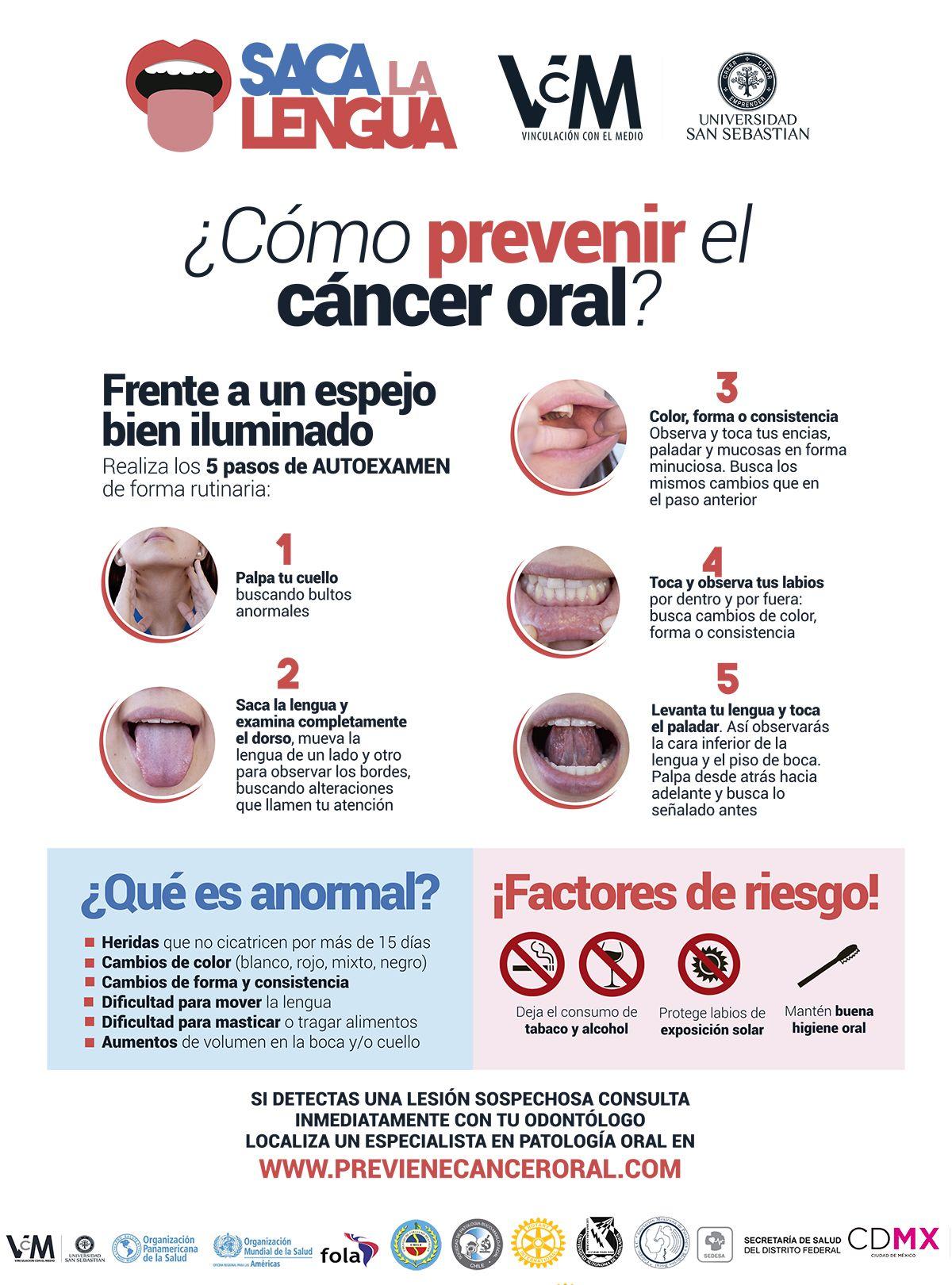 cancer bucal prevencion