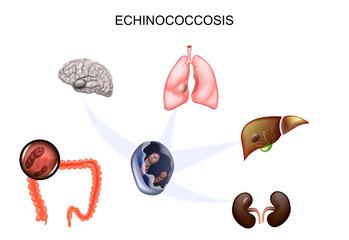 Tratamentul helmintelor simptomelor de vierme rotunde