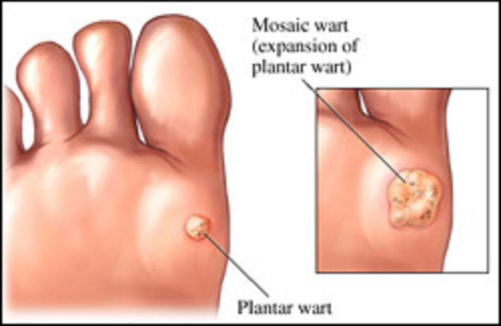 wart virus causes