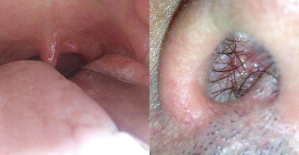papilloma virus nel naso cancer of the throat caused by hpv