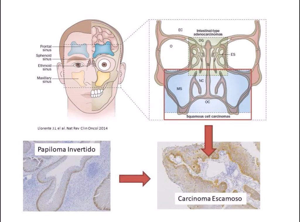 Papiloma nasal escamoso. Keratinizing squamous papilloma - Papiloma fosa nasal