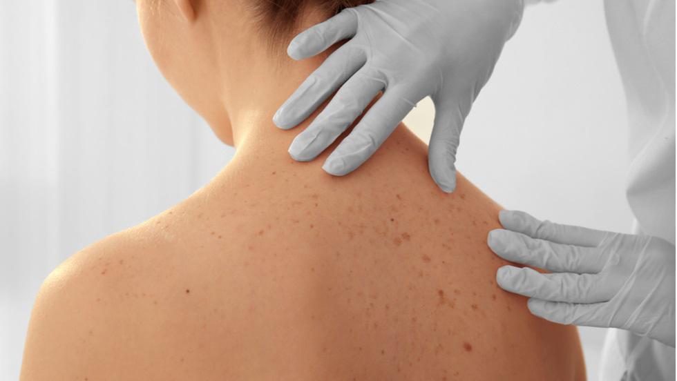 cancerul de piele in romania