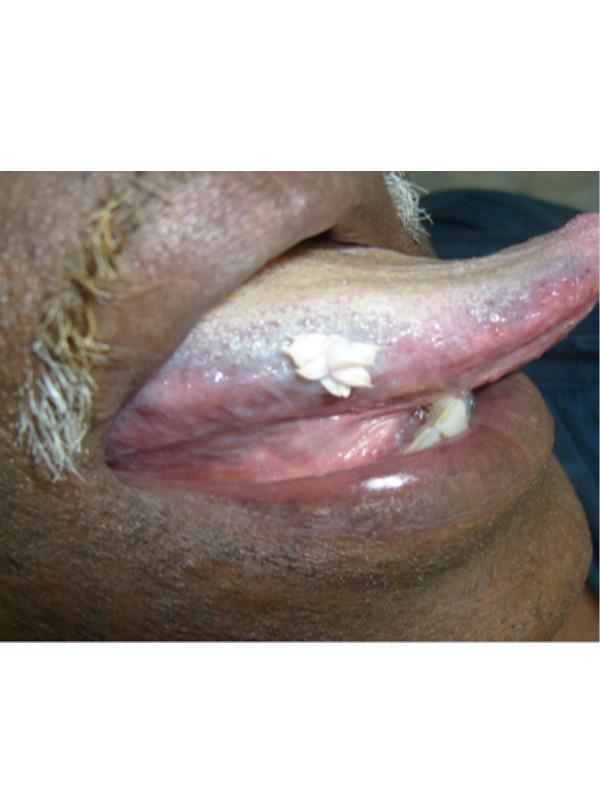 Squamous papilloma vs condiloma, Determina parazitii metazoanului