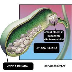 remediu pentru vierme care tratează papilomele orale