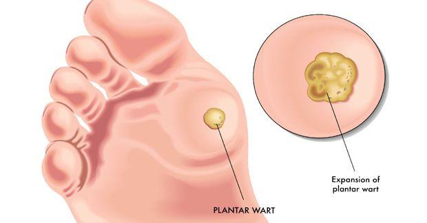 Vaccinul HPV. Ce este papilomavirusul si vaccinul anti HPV.   Catena