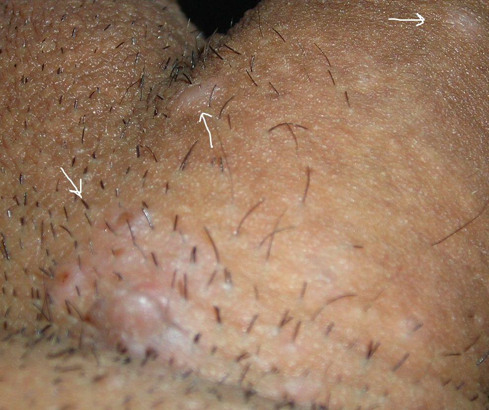 hpv causes pimples negi pe mamelonul sânului