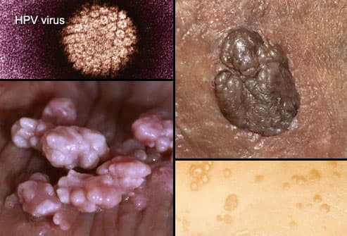 hpv and genital herpes