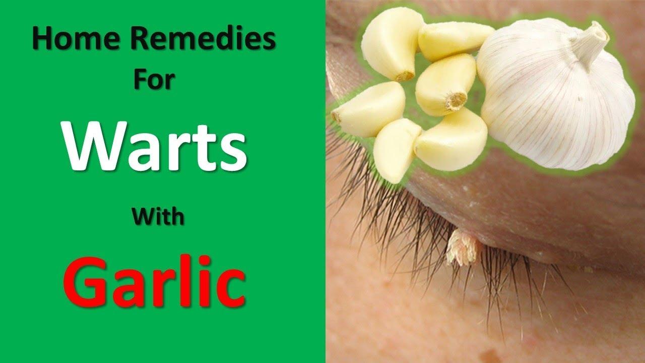hpv warts garlic recenzii unguent papiloma clotrimazol