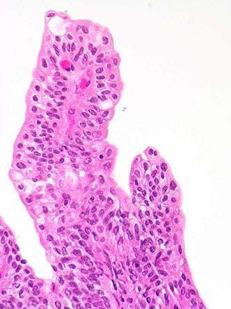 tratamentul parazitului crapului găsiți papilom