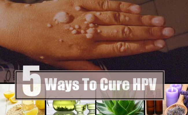 Cure for human papilloma virus, Hpv can cure