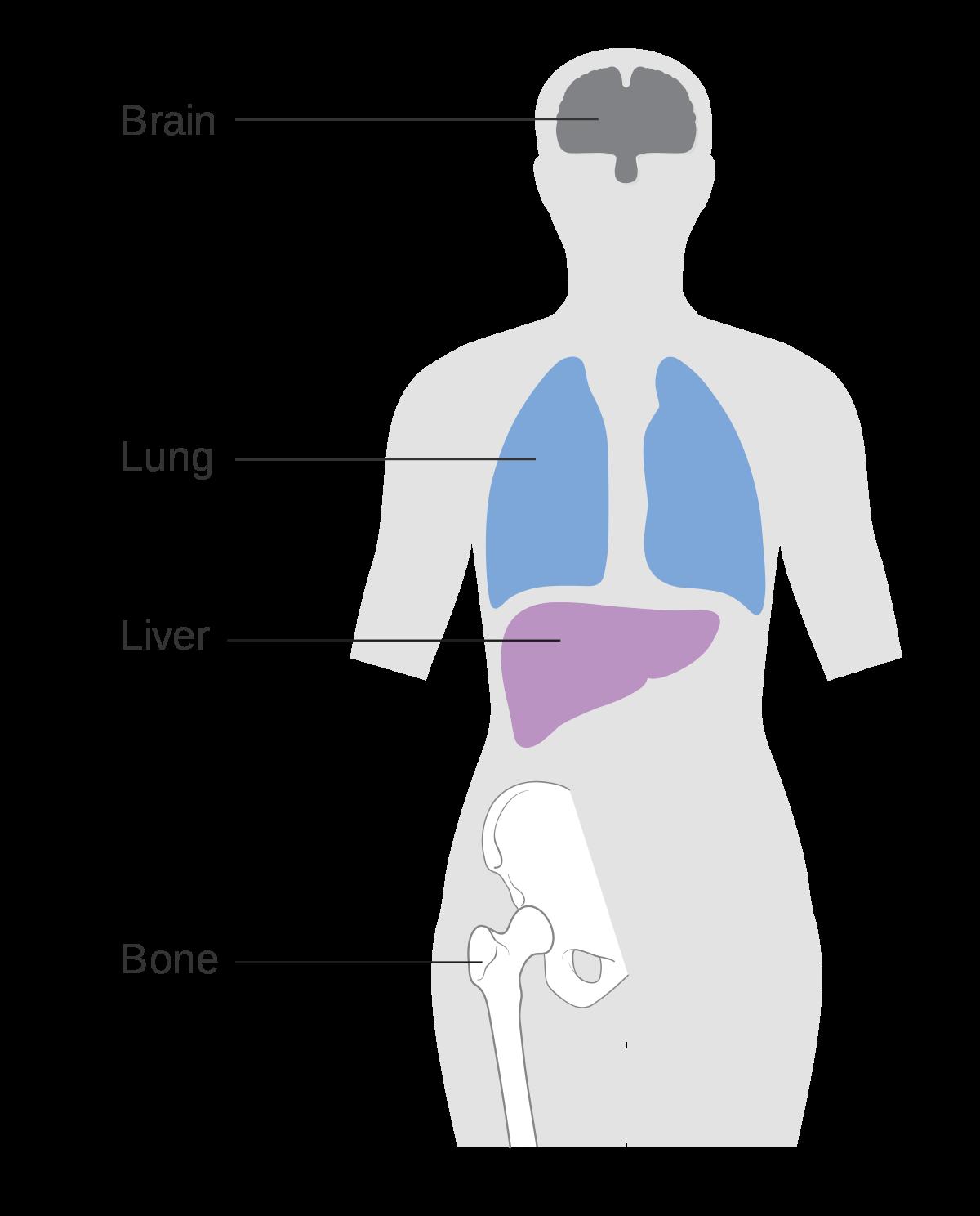 Cum să elimini helminții morți din intestine cu vermox