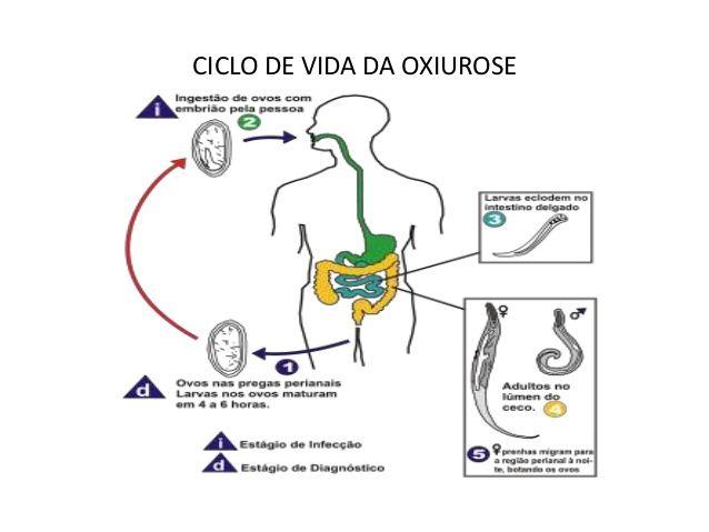 O que e bom para verme oxiurus - csrb.ro Qual o melhor tratamento para oxiurus