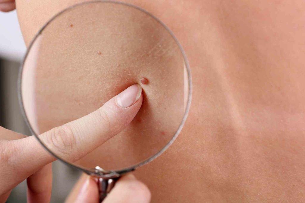 verucile genitale la femei nu mănâncă toxoplasma pozitiva in sarcina