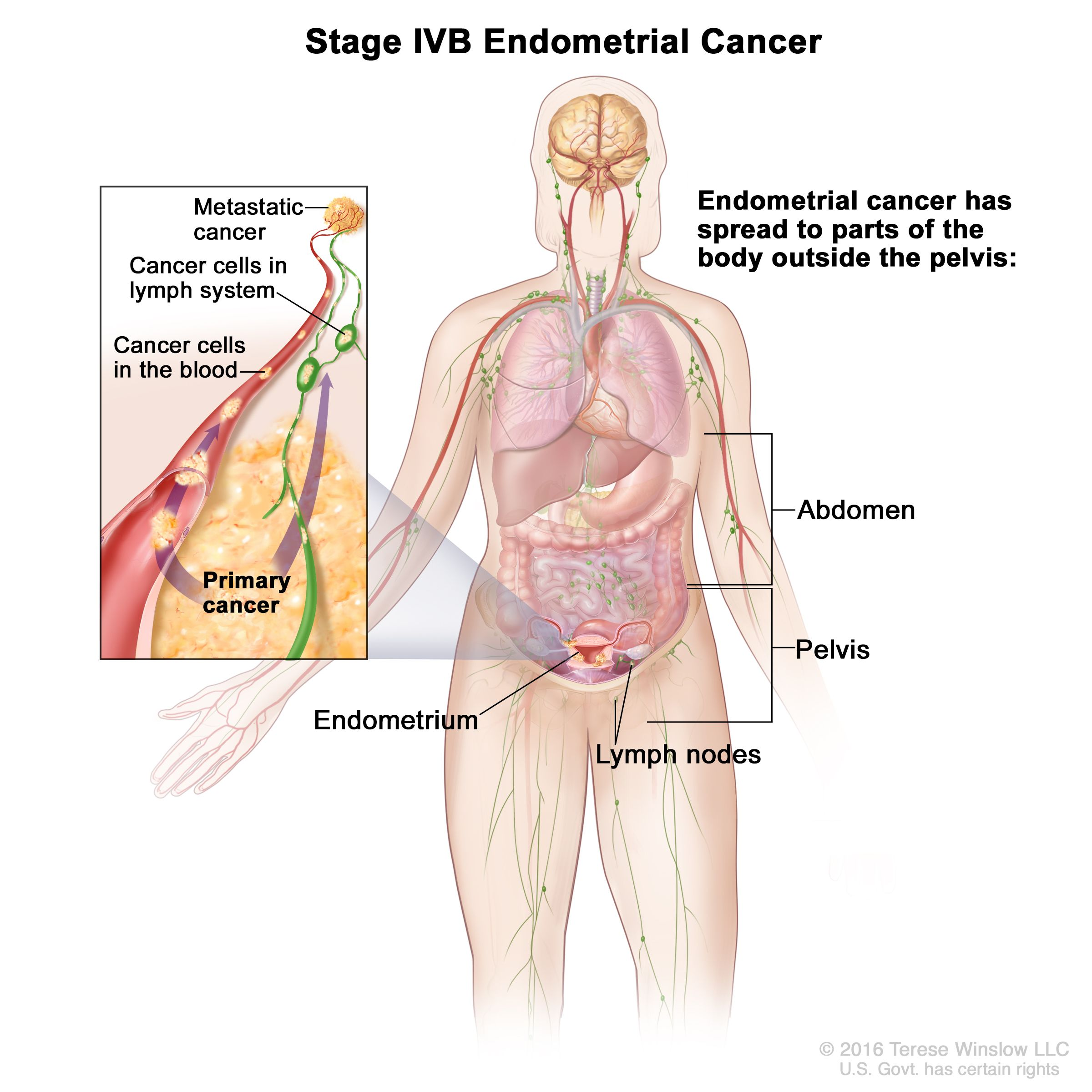 endometrial cancer recurrence