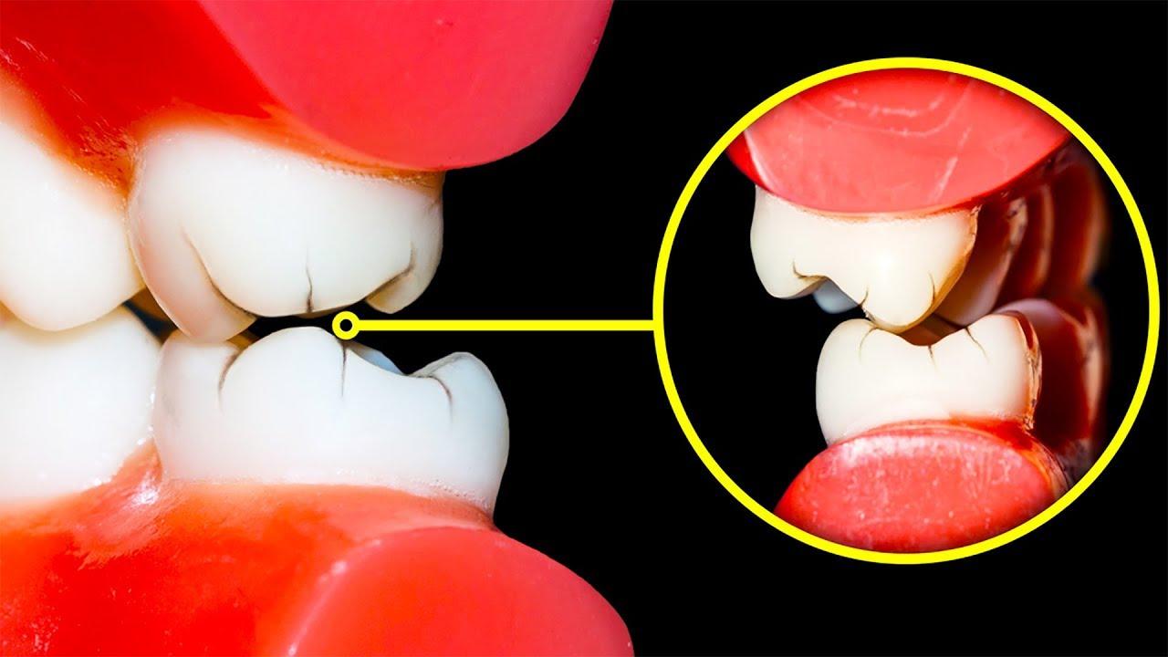 Papilloma benigno bocca