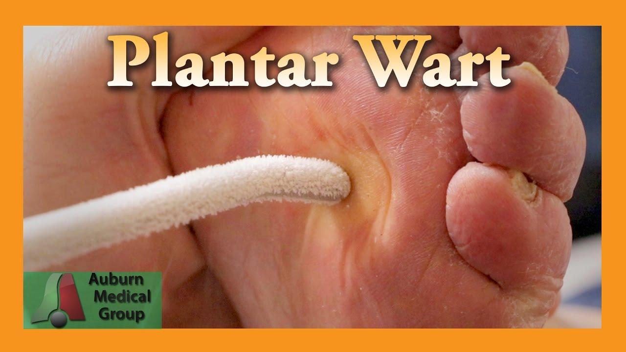 wart treatment in foot