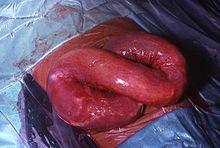 helminth definition comment detecter le papillomavirus chez l homme