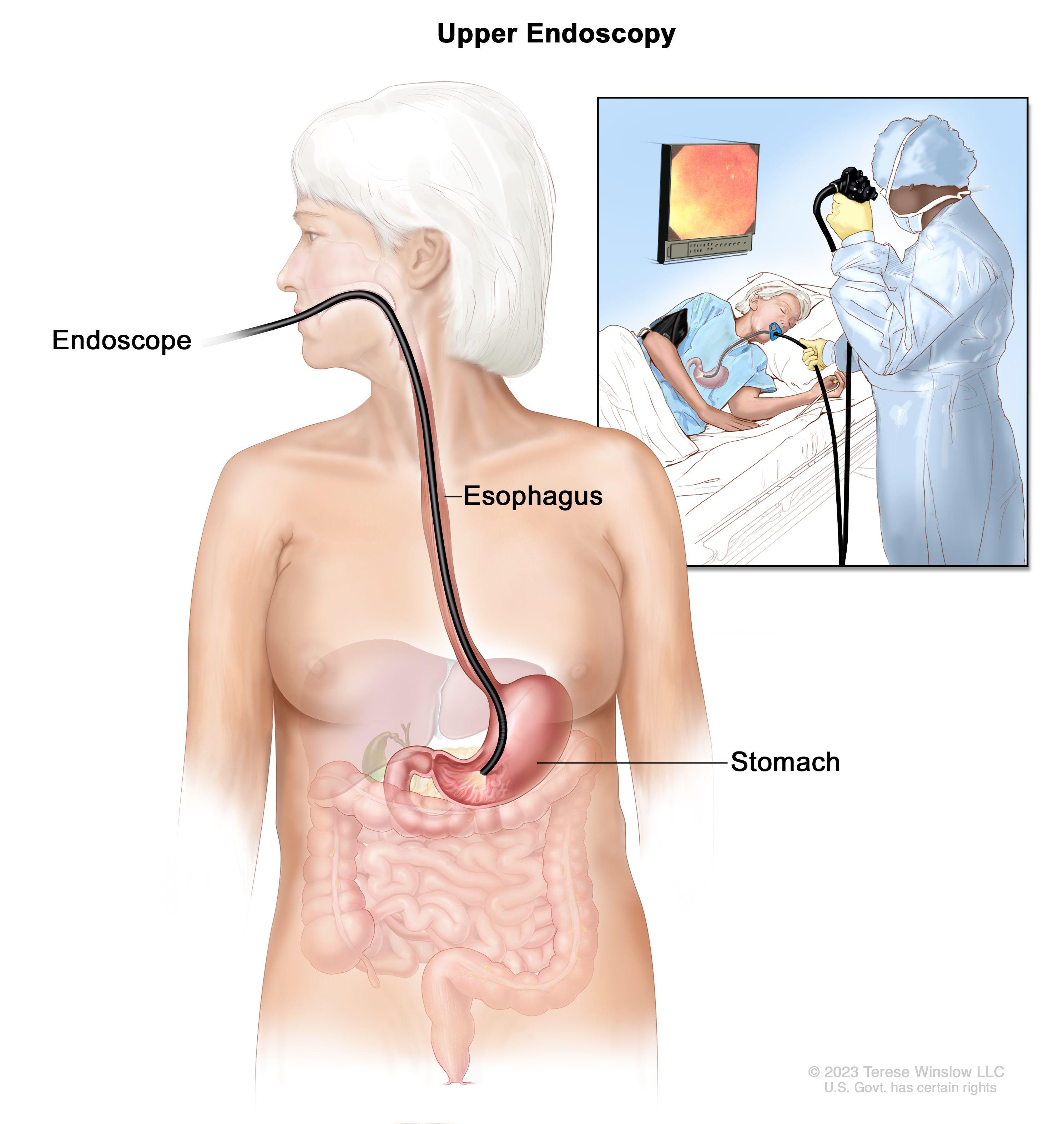 abdominal cancer removal cancer non metastatic