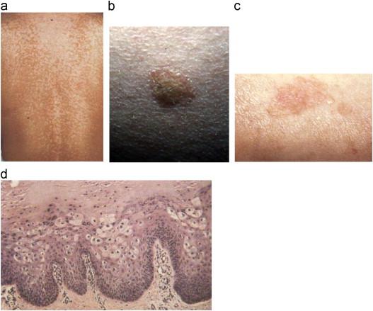 hpv virus rash