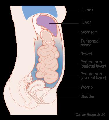 cancer and abdominal wall un condilom în anus