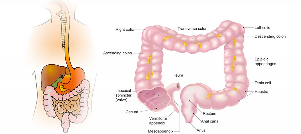 Semne și simptome ale cancerului de colon la bărbați | Royal Hospital