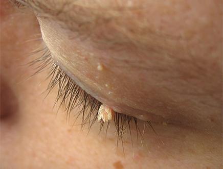 Papilom pe tratamentul feței, Virusul papiloma uman – înlăturarea condiloamelor şi papiloamelor