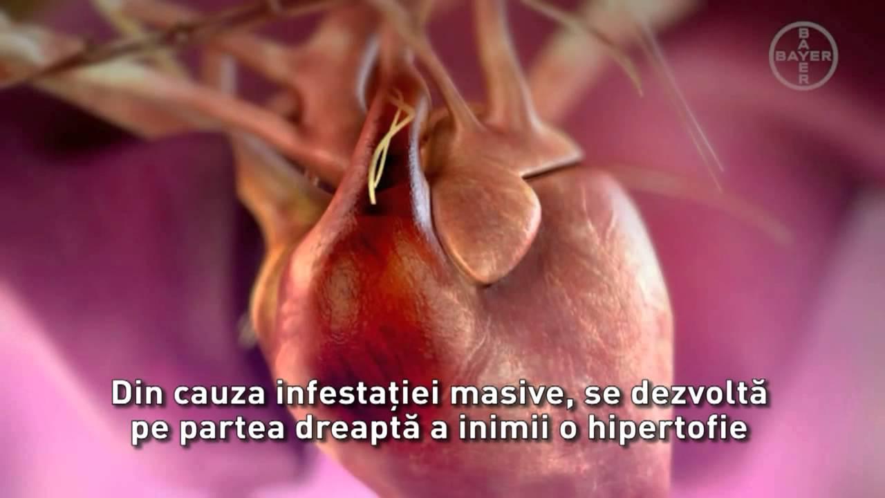 Tratament cu viermi intestinali pentru colita ulcerativa. Un caz clinic controversat