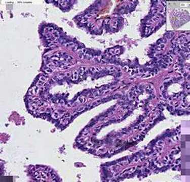 ductal papilloma histopathology