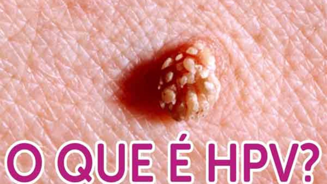 Hpv genital masculina. HPV genotipare-uretră