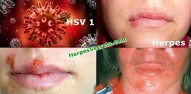 Transmission papillomavirus preservatif, Prostatite cause le sexe anal, Hpv ou herpes genital