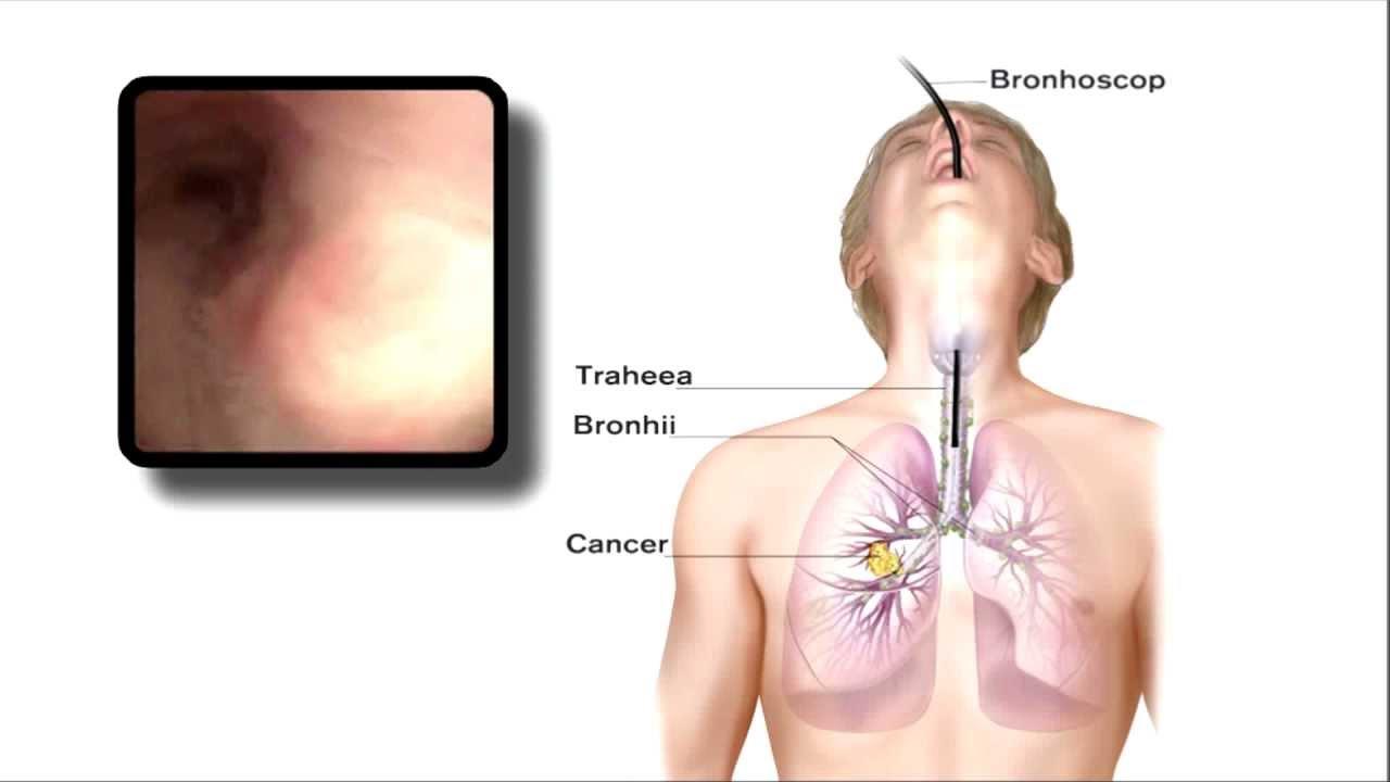 cancerul de plamani se vindeca cum să retrageți papilomele singuri