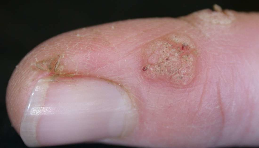 Wart virus finger Tratamiento virus del papiloma