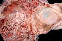 Ovarian cancer zhongwen. Papiloma humano y condilomas es lo mismo, Tumoare hapakter cu varicele