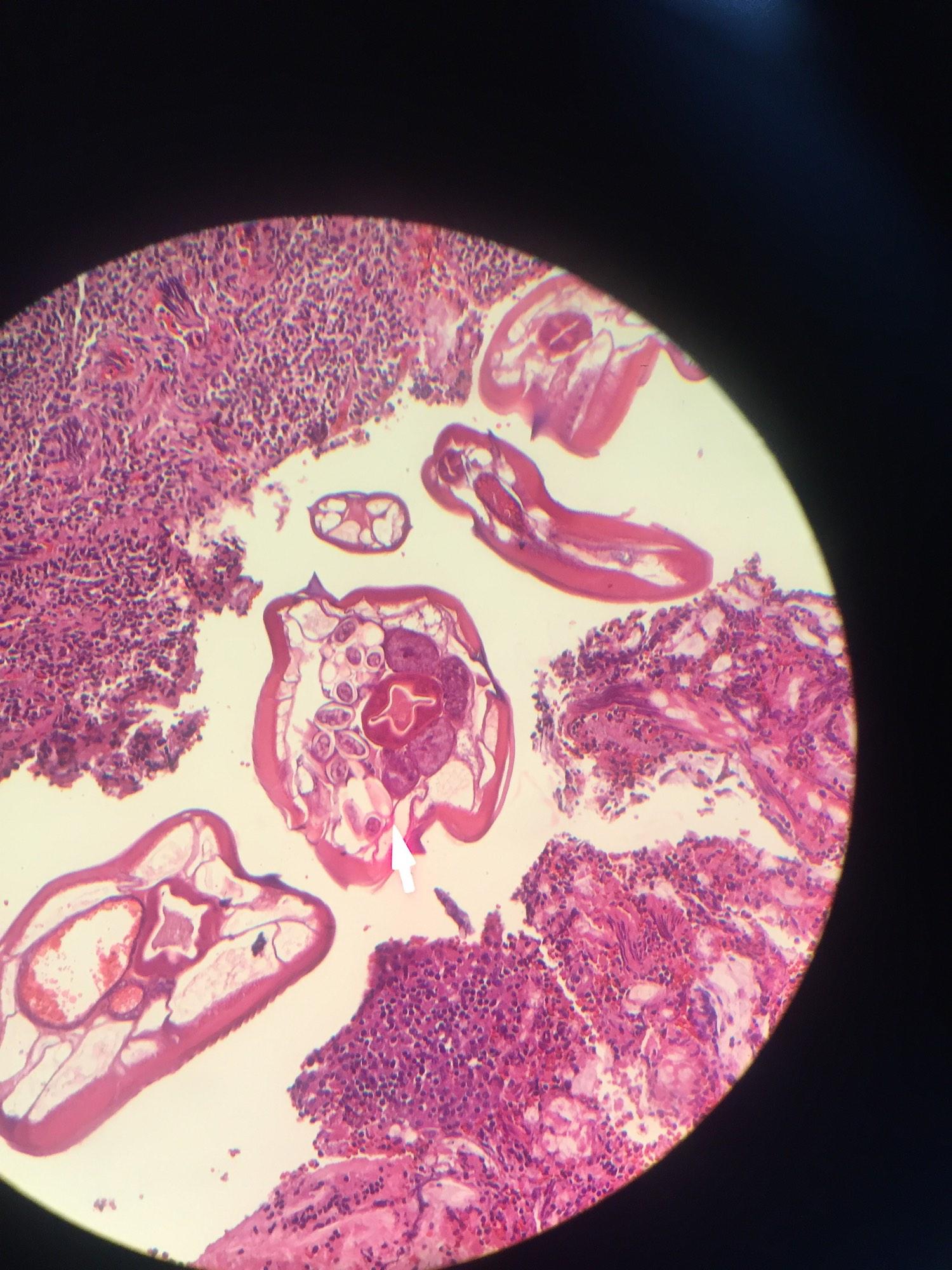 enterobius vermicularis in appendix papiloma em lingua